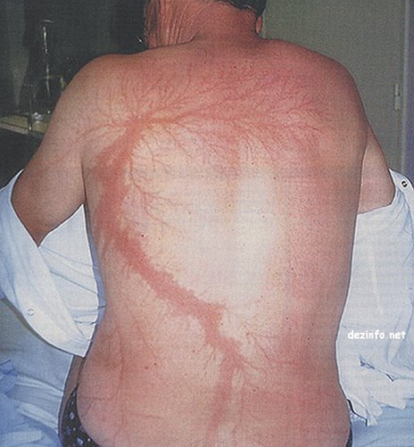 "This 54-year-old man was struck by lightning and was initially out of it, but by the time he got to the emergency room he seemed well and upon further examination it was discovered that he had a fern-leaf pattern of ""painless cutaneous marks across his arm, back and leg"". The marks disappeared two days later. (photo credit: Domart and Garet, NEJM)"