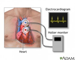Holter Heart